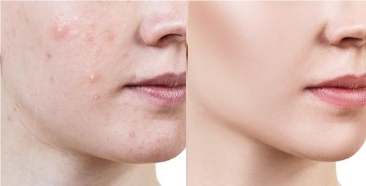 肌荒れ、ニキビにも効果的な美容鍼(鍼灸)